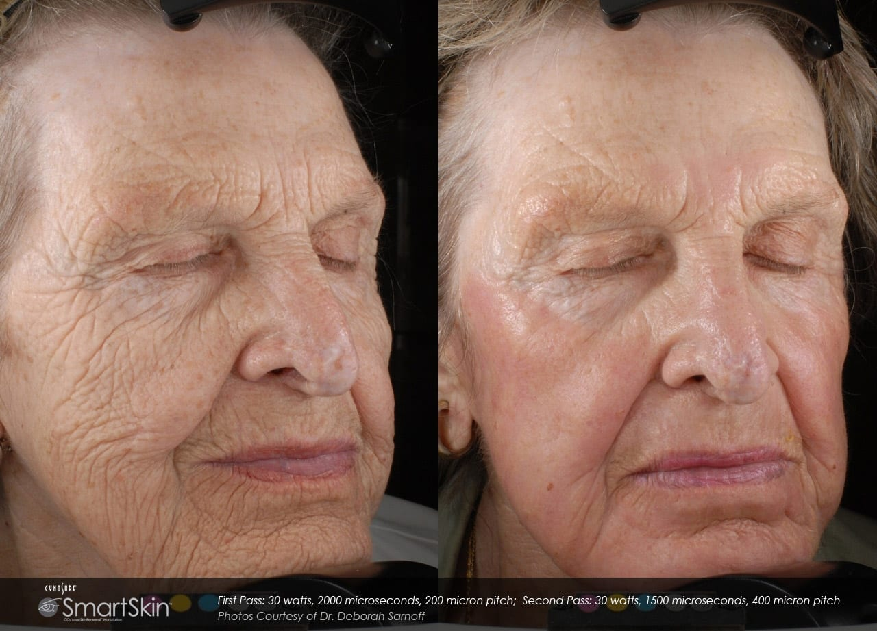 Co2 Fractional Resurfacing Before And After Photos From Well Medical Arts In Seattle.