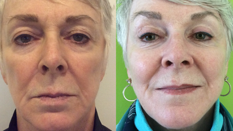 Bellafill For Cheeks & Temples Before And After. Bellafill Is Our Favorite Filler For Correcting Volume Loss In All Areas Of The Face. Learn More About The Longest Lasting Filler Available, Bellafill At Well Medical Arts In Seattle