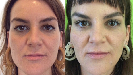 Bellafill Before And After Cheeks. Bellafill Is Our Favorite Filler For Correcting Volume Loss In The Cheeks. Learn More About The Longest Lasting Filler Available, Bellafill At Well Medical Arts In Seattle