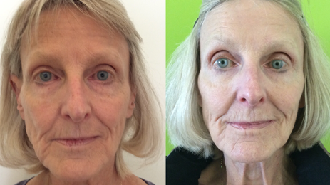 Bellafill Before And After Treatment Kit Doing A Partial Upper Liquid Facelift. Learn More About The Longest Lasting Filler Available, Bellafill At Well Medical Arts In Seattle