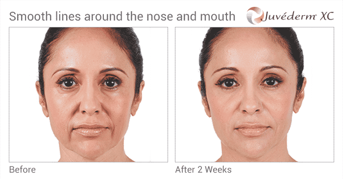 Learn What Juvederm XC In The Hands Of An Expert Injector Can Do. Before And After Nasolabial Fold