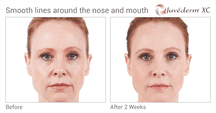 Experienced The Expert Seattle Juvederm Injector