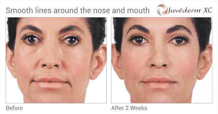 Experience The Expert Seattle Juvederm Injector At Well Medical Arts. Learn More At Juvederm