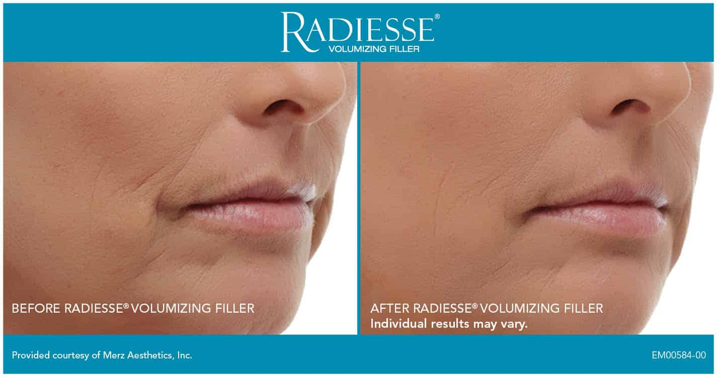 Experience Radiesse Filler in the hands of expert injector