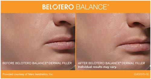 In Seattle We Use Belotero Filler For Taking Care Of Fine Lines And Adding The Finishing Touch.