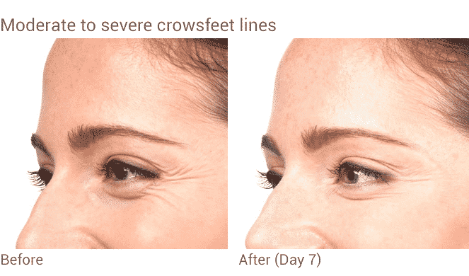 Before And After Botox Treatment For Crowsfeet In Seattle At Well Medical Arts