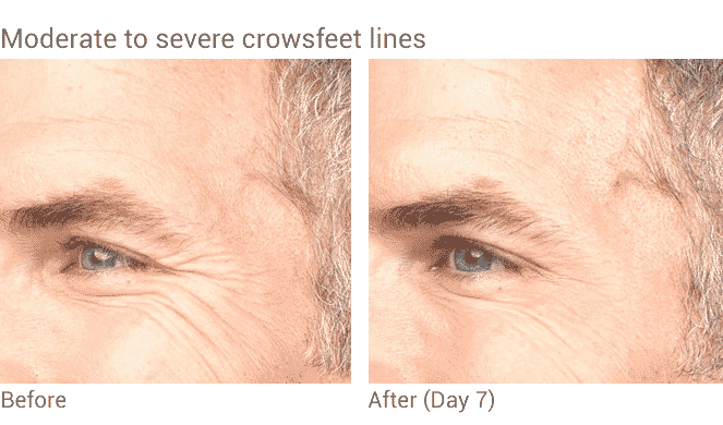 Well Medical Arts Offers The Best Botox Treatments In Seattle. Before And After Botox Treatment For Mens Crows Feet In Seattle At Well Medical Arts