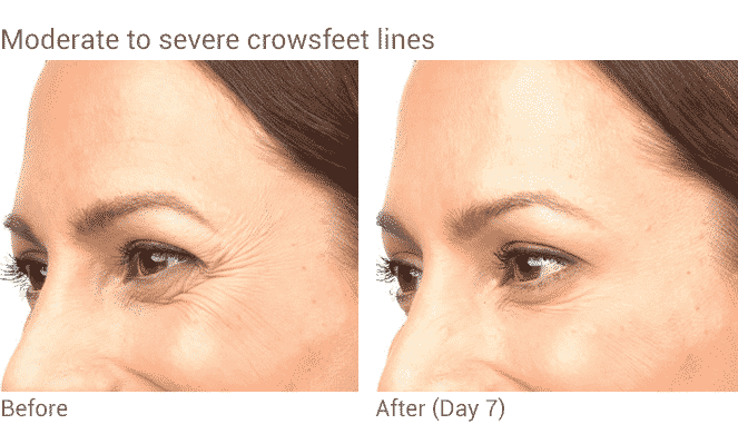 Well Medical Arts Offers The Best Botox Treatments In Seattle. Before And After Botox Treatment For Women's Crows Feet In Seattle At Well Medical Arts.