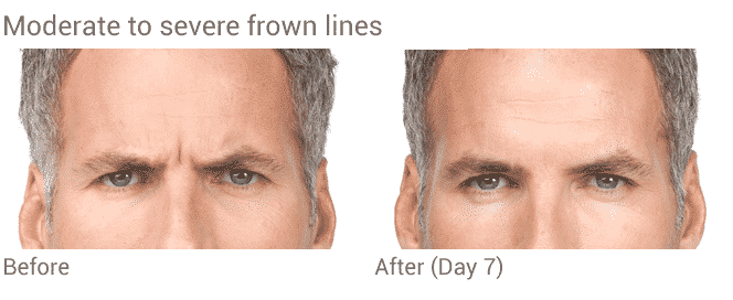 Before And After Botox Treatment For Men's Frown Lines In Seattle At Well Medical Arts.