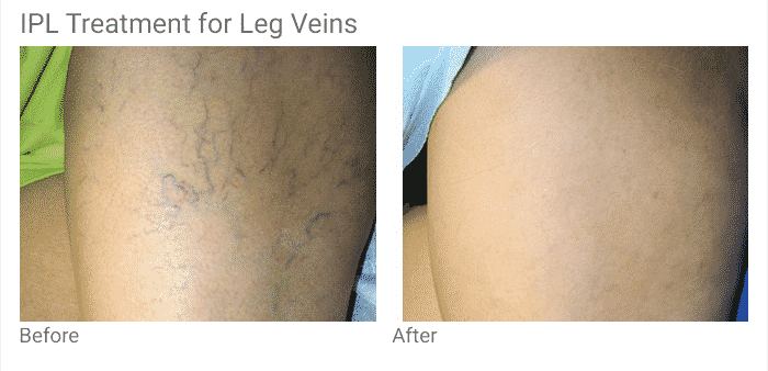 Treat Your Leg Veins For The Seattle Summer With A Series Of IPL Treatments