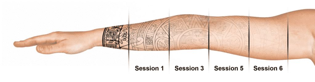 West Seattle Laser Tattoo Removal Well Medical Arts Well Medical