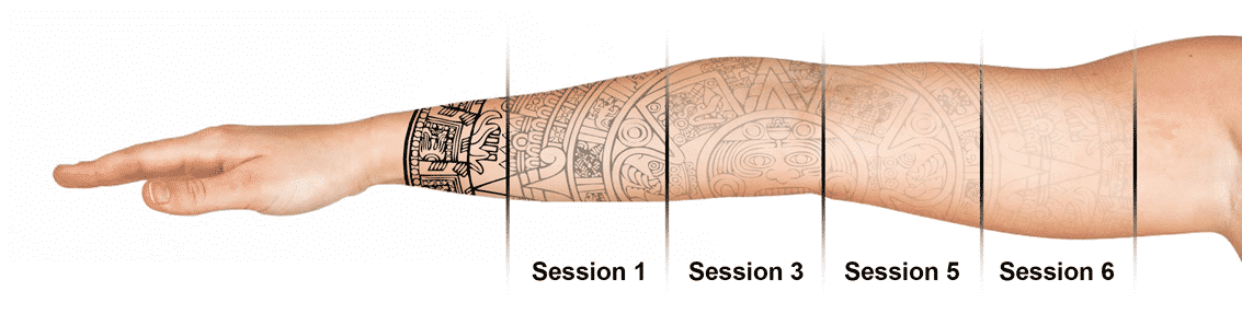 The stages of Seattle Laser Tattoo Removal. Call Well Medical Arts at 206-935-5689 to schedule your complimentary consultation or visit http://wellmedicalarts.com/tattoo-removal/ to learn more.