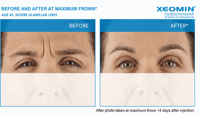 Experienced the expert Seattle Xeomin injector
