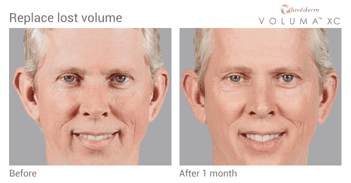 Men, Replace The Lost Volume In Your Cheeks With Voluma To Maintain That Youthful Look.