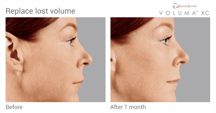 Juvederm Voluma Before And After Cheek Volume
