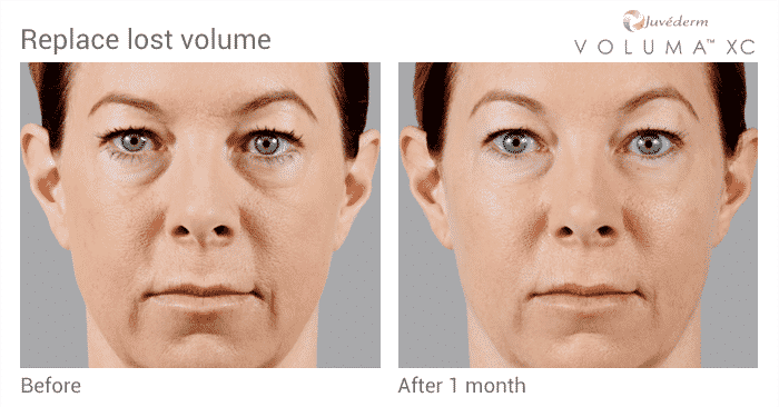 Restore Volume Loss With Juvederm Voluma Before And After