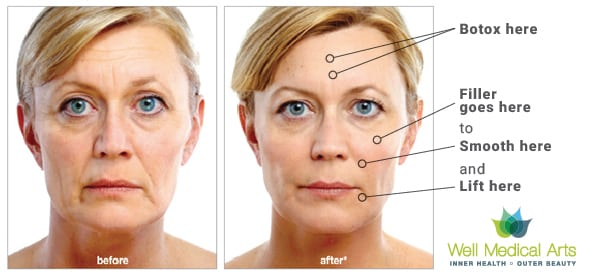 Lifting the face in Seattle with a combination of Botox and Dermal Fillers like Voluma, Bellafill or Radiesse