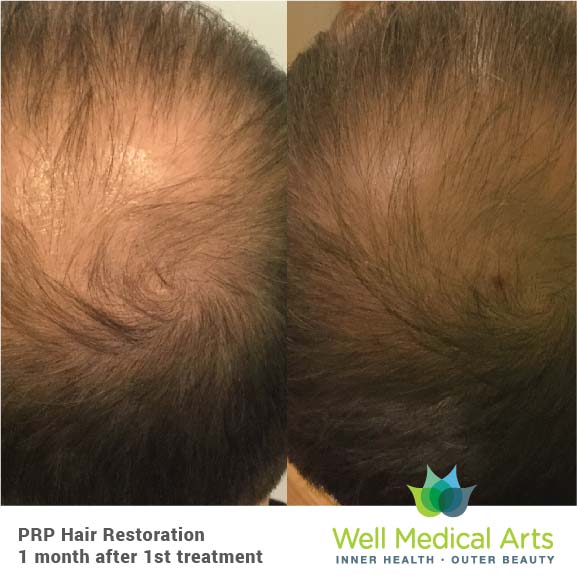 Seattle PRP Hair Restoration - 1 Month post 1 Treatment