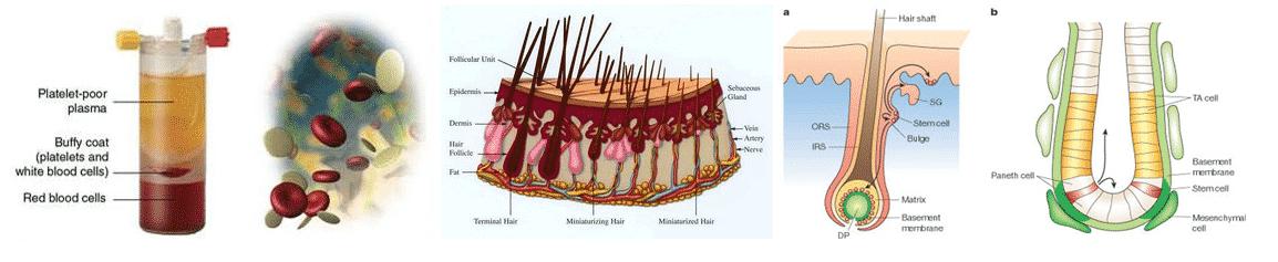 PRP-Hair-loss-treatment-Paphos