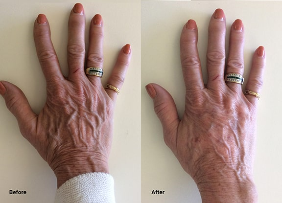 Radiesse Is Now Indicated For The Hands. We Are Pleased To Offer Hand Rejuvenation At Well Medical Arts.