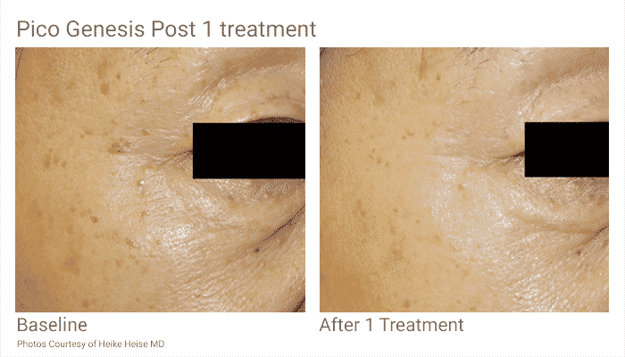 Pico Genesis Is The Latest No Downtime Laser Skin Rejuvenation Treatment .