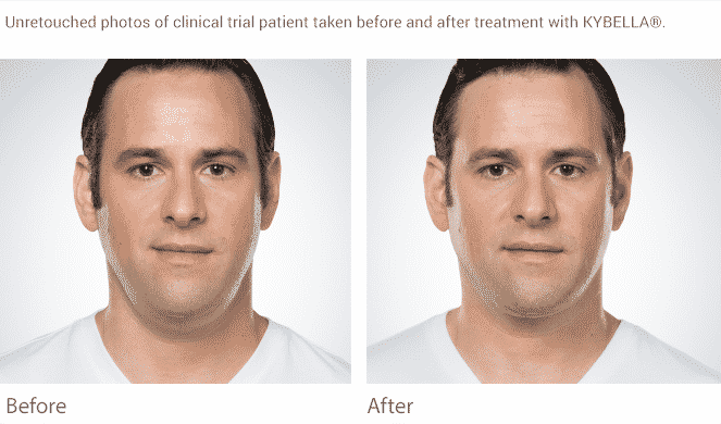 Eliminate The Double Chin In Seattle With Kybella At Well Medical Arts.We Have A Full Line Of Mens Treatments From Botox To Testosterone To Viagra. Call Us At 206-935-5689 To Find Out More.