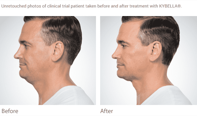 Eliminate The Double Chin In Seattle With Kybella At Well Medica Arts. We Have A Full Line Of Mens Treatments From Botox To Testosterone To Viagra. Call Us At 206-935-5689 To Find Out More.