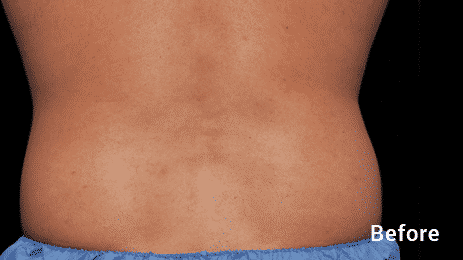 CoolSculpting Before After MEN Seattle 11