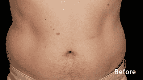 CoolSculpting Before After MEN Seattle 7