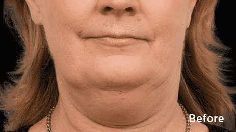 Get Rid Of That Double Chin In Seattle With Coolsculpting. We Are The Only Coolsculpting In West Seattle. Call 206-935-5689 To Schedule Your Appointtment.