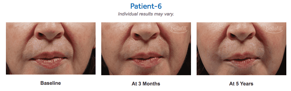 Dominique Well At Well Medical Arts Is Seattle's Very Own Expert Bellafill Injector. Bellafill Is The Longest Lasting Dermal Filler Available, Lasting Up To 5 Years.