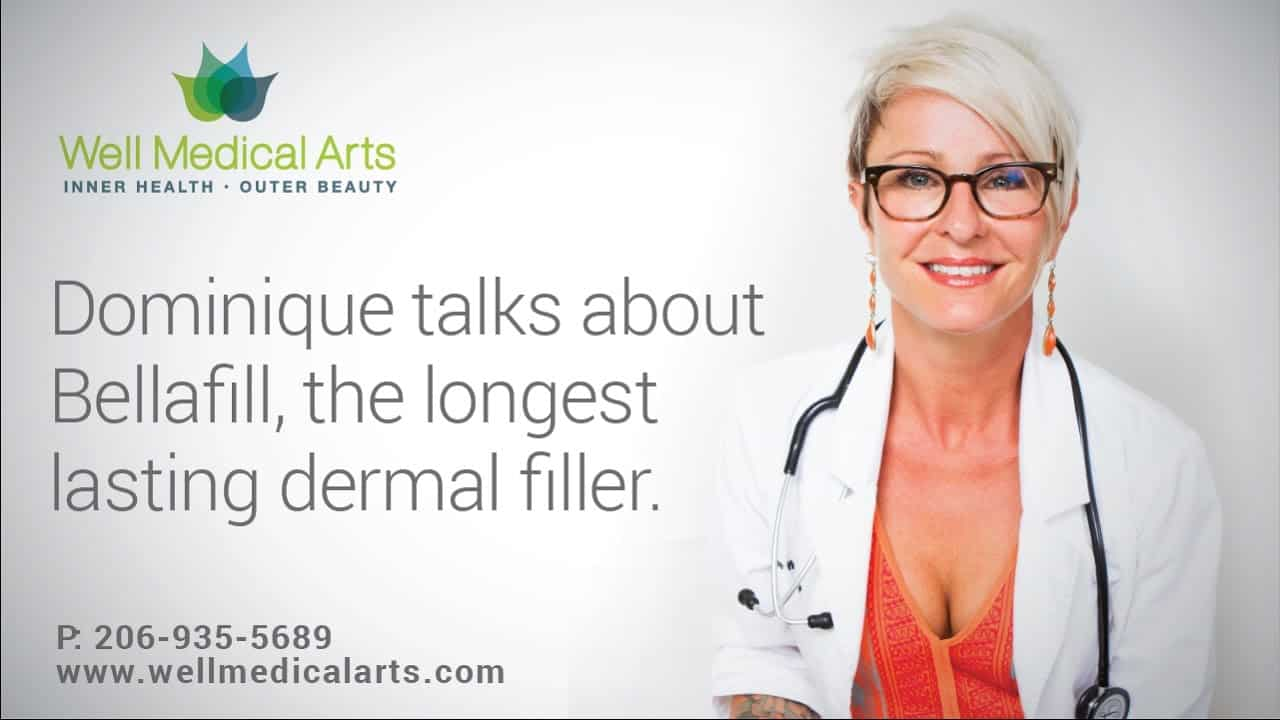Bellafill Is The Longest Lasting And Most Cost Effective Filler Available.