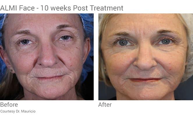 Almi procedure full face rejuvenation with stem cells from fat transfer.