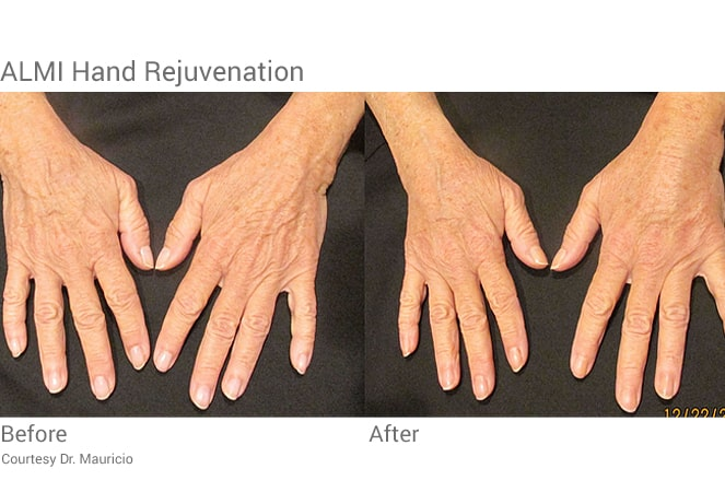 Almi procedure hand rejuvenation with stem cells from fat transfer.