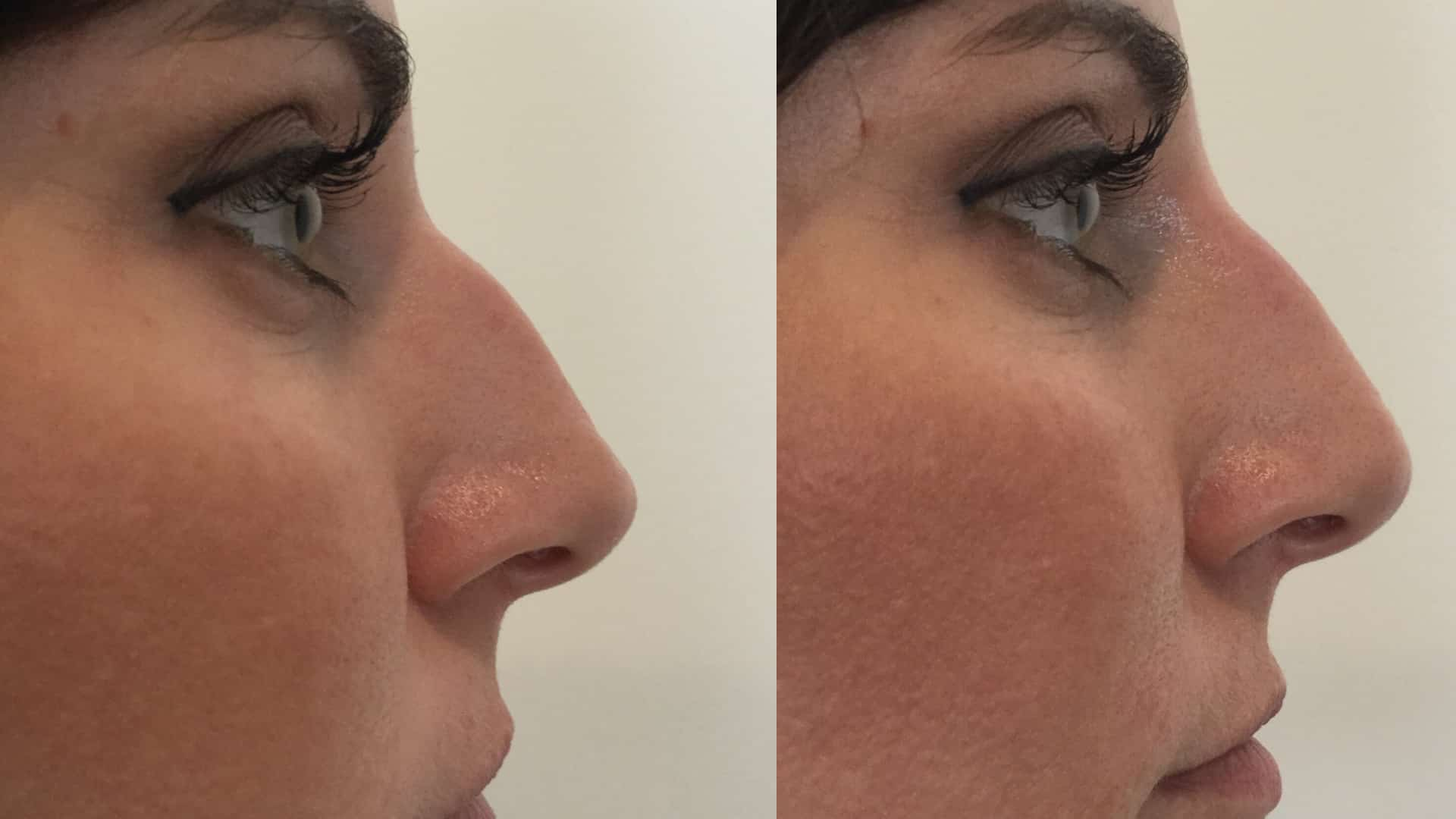 If You Have Ever Considered A Nose Job This Is The Procedure For You. Drastically Improve The Shape Of Your Nose With A Simple In Office Visit.