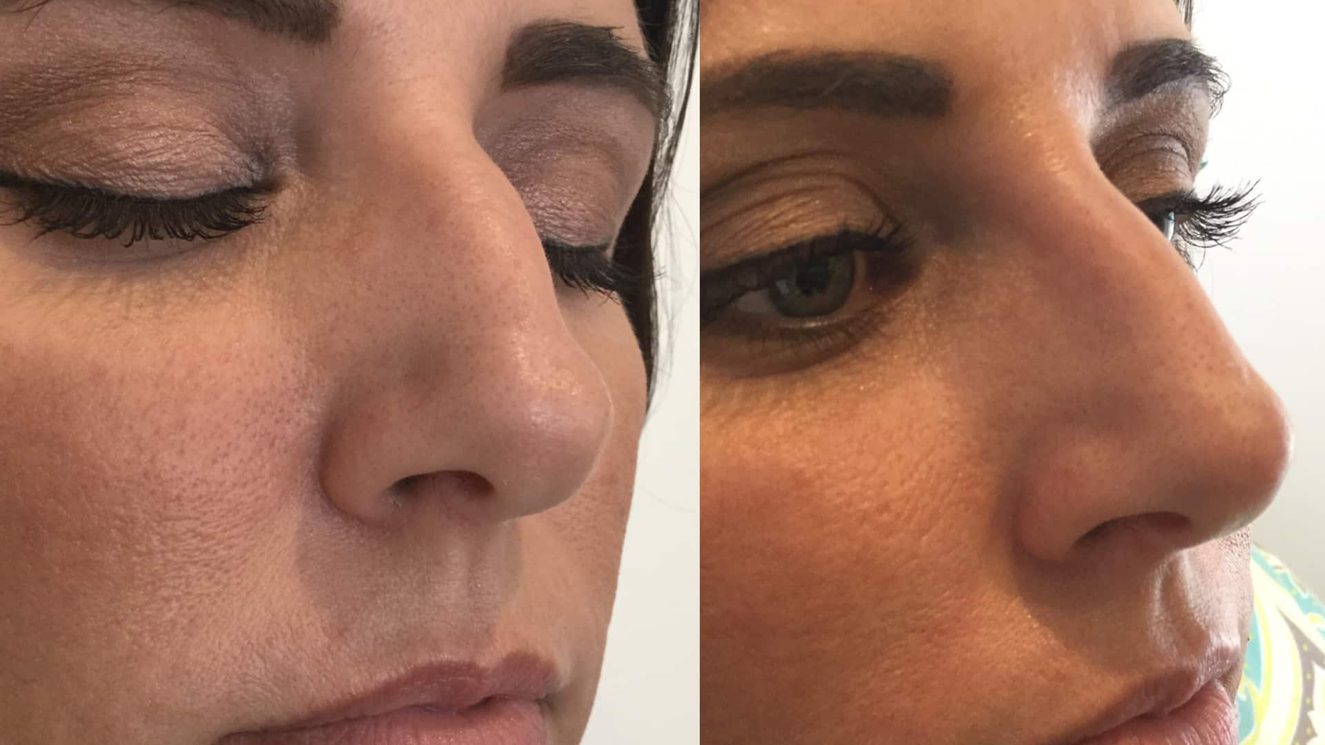 Considering A Nose Job? Consider The 15 Minute Nose Job. We Use Dermal Fillers To Shape And Contour Your Nose In A Simple In Office Procedure. No Downtime.