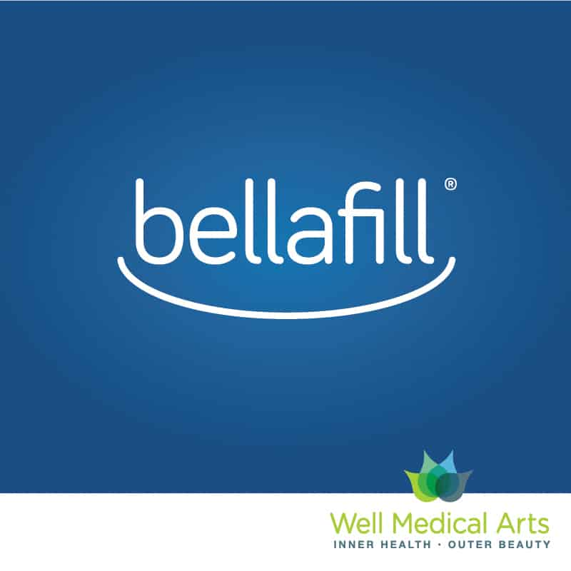 Bellafill is the longest lasting dermal filler available with the longest safety study of it's kind. Call 206-935-5689 to schedule your consultation to learn more.