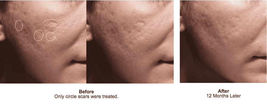 Afill: Is A A New FDA Approved Injectable Treatment For Acne Scars