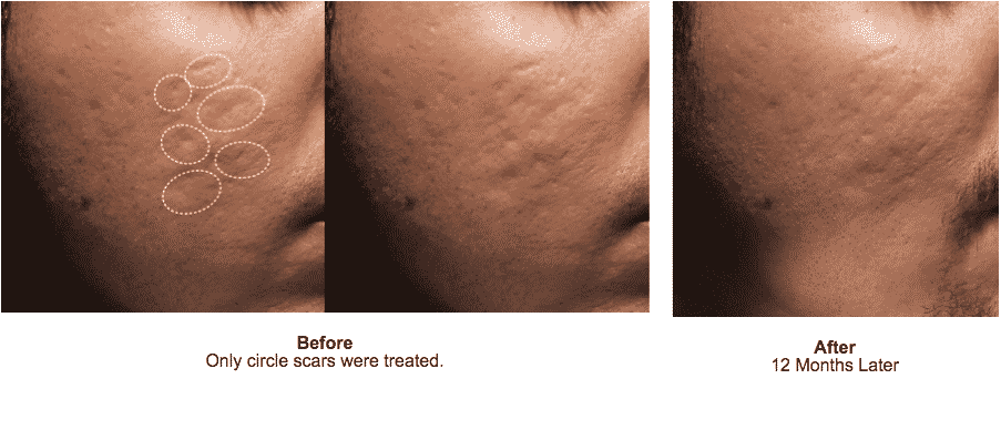 Bellafill For The Treatment Of Acne Scars Is The Only FDA Approved Filler For Correction Of Acne Scars.