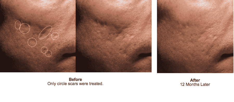 Seattle Bellafill Acne Scar Before And After 2