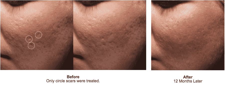 Learn How To Get Rid Of Acne Scars For Good With Bellafill. Call Well Medical Arts At 206-935-5689 To Schedule Your First Treatment. Bellafill For Acne Scars