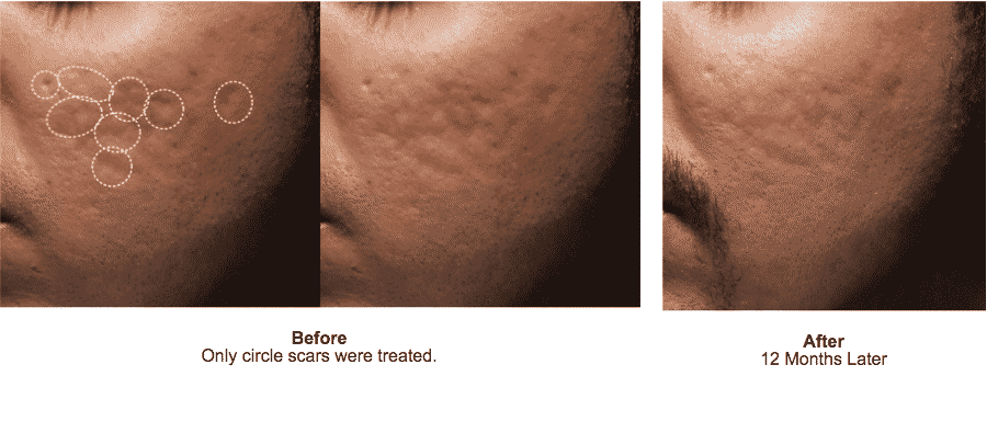 Seattle Bellafill Acne Scar Before And After Well Medical Arts Well Medical Arts Seattle S Anti Aging Clinic