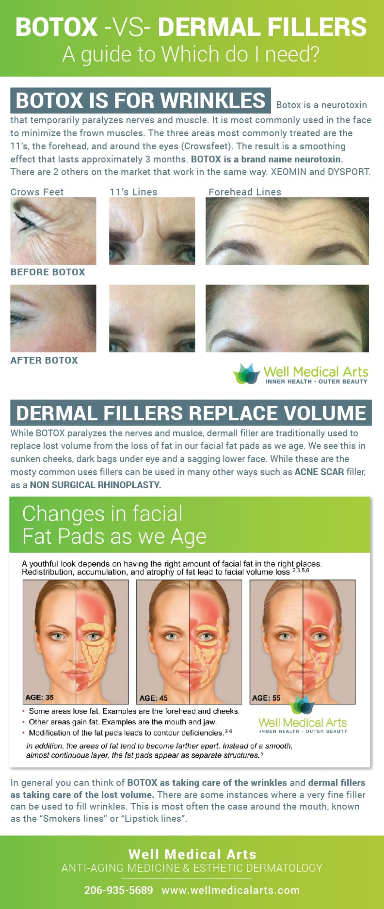 Botox vs Dermal Fillers, Which do I need to address my concerns?