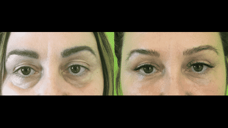 Dermal Fillers In The Tear Troughs Can Help Minimize The Appearance Of Dark Circles Under They Eyes That Make You Look Old Or Tired.