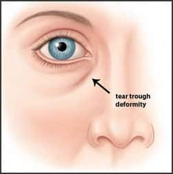 Tear Trough Illustration of how black bags under the eyes are created.