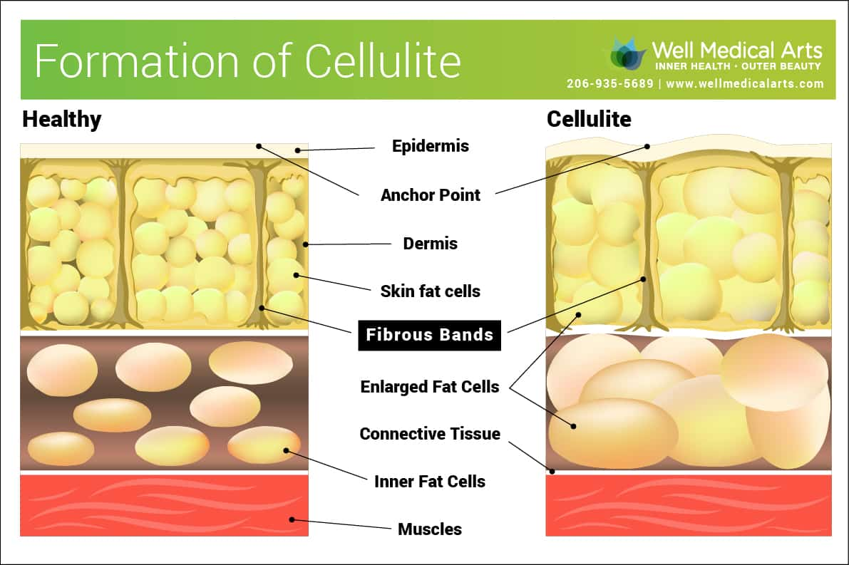 Seattle Cellulite treatment using Sculptra at Well Medical Arts. Call 206-935-5689 to schedule your consultation.