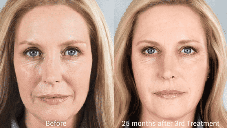 Sculptra® Aesthetic Helps Stimulate Your Skin's Natural Collagen Production And Works Subtly, Gradually Over Time For A More Youthful-looking Appearance.