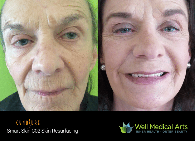 CO2 Fractional Resurfacing Seattle Well Medical Arts Before After2