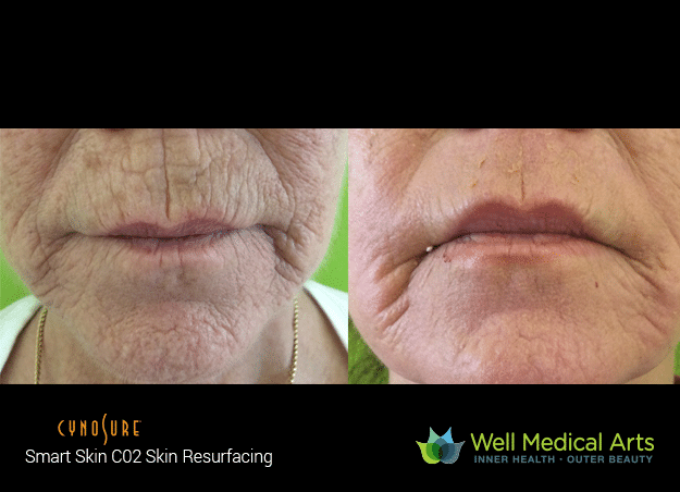 Co2 Fractional Resurfacing Seattle Well Medical Arts Before After 1