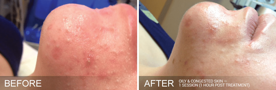 Hydrafacial Before And After For Oily Congested Skin. Call 206-935-5689 To Schedule Your Hydrafacial.